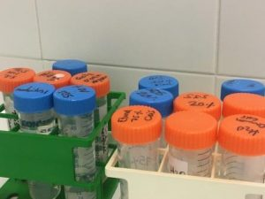 Tratamientos Neuroblastoma